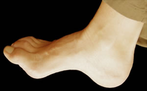 Picture Of A Foot With An Extra High Arch