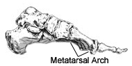 metatarsal arch supported