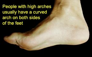 Pretty high arch feet